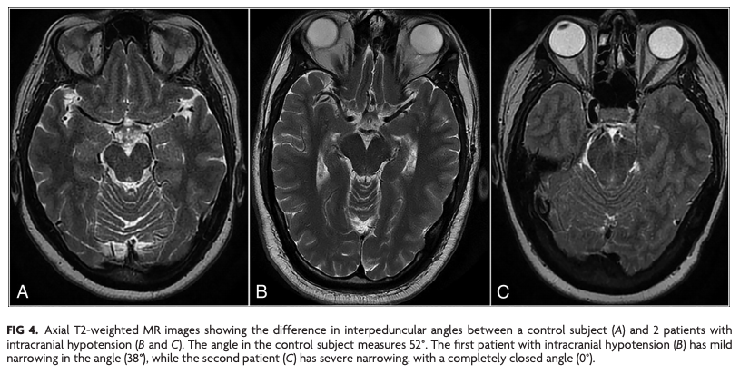 The Interpeduncular Angle: A Practical and Objective Marker for the Detection and Diagnosis of Intracranial Hypotension on Brain MRI  http:// bit.ly/2KErTMt     | #NeuroRad<br>http://pic.twitter.com/Ci3l4yXDdn