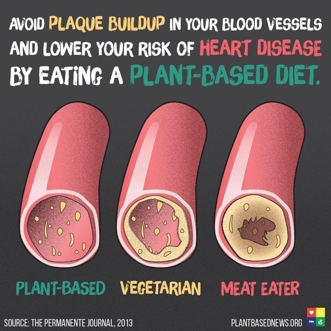plant based diet artery