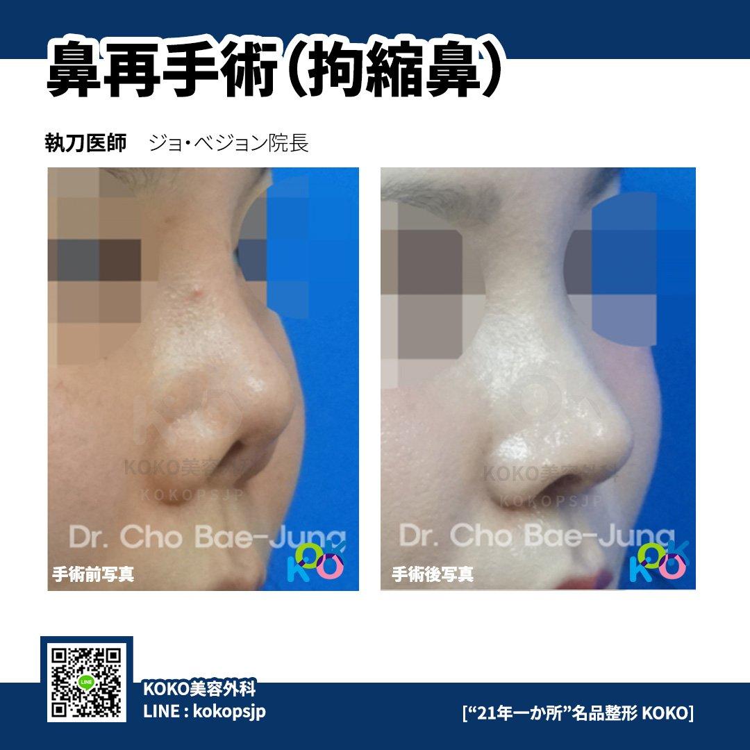 『KOKO美容外科の夏締め [初、鼻整形単独割引イベント]』➜ 2019年7月1日〜10月31日までに手術を希望されるお客様➜ 今回の夏価格割引イベントでは、KOKO美容外科の鼻整形を最大20%割引が適用された価格で受けることができます。➜  …➜ LINE : kokopsjp