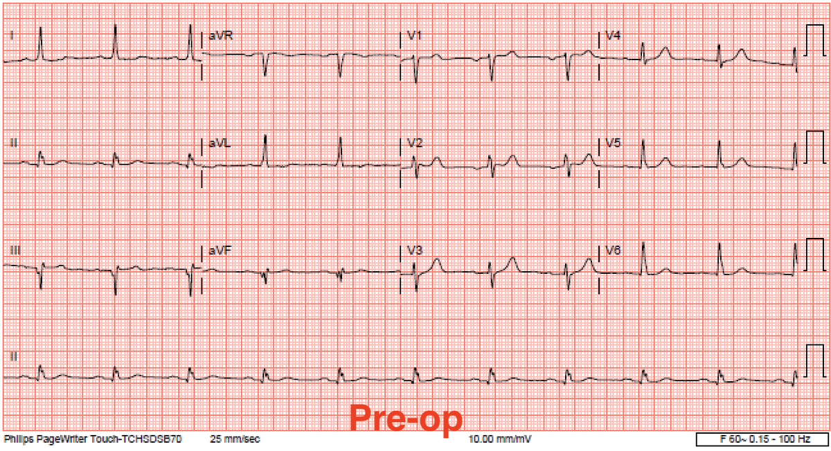 Cases like this one from a few months ago give me pause. — Acute AV block next day after self expanding #TAVR. Normal ECG and conduction pre, intra and post op. It's a whole lot easier taking out a temp pacer than putting one in. #EPeeps