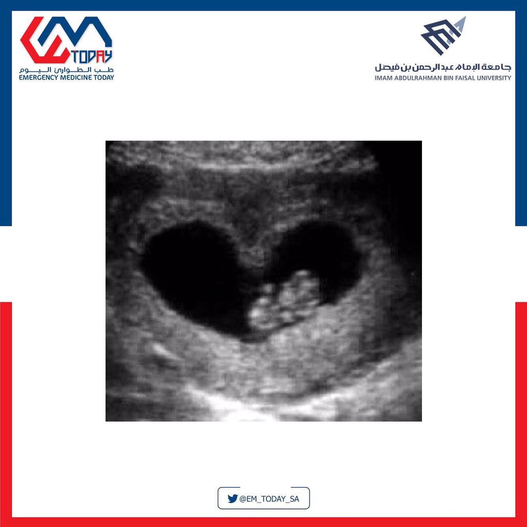 Let us just tell you this, ULTRASOUND is an emergentologist's true friend!  And if you don't believe us?  We will prove it to you  #WORKSHOPS  #EM_TODAY2019 <br>http://pic.twitter.com/SVE1V84vEl