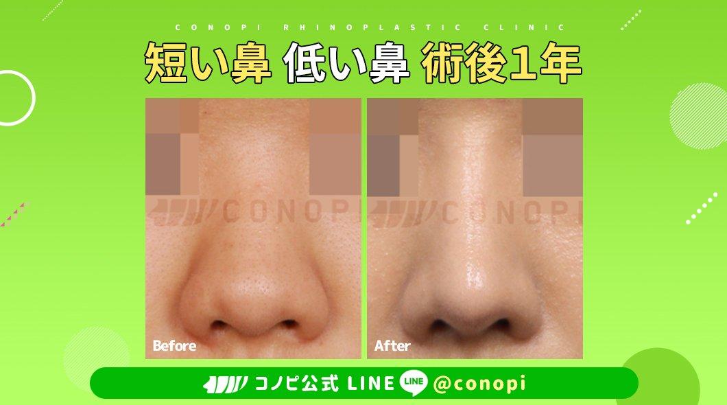 韓国鼻専門?コノピ美容整形外科耳軟骨の特徴✨耳軟骨は他の軟骨と比べ柔らかいという長所があります☝耳軟骨は鼻先の形を作る時に役立ち、アップノーズになる現象を予防する事が出来、自然な鼻先の形に改善が可能です?鼻中隔軟骨の大きさが不足している場合に追加で使用する場合が多いです✨