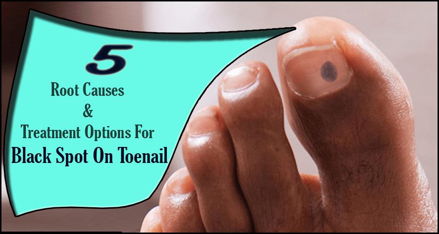 Spot under toenail black When to