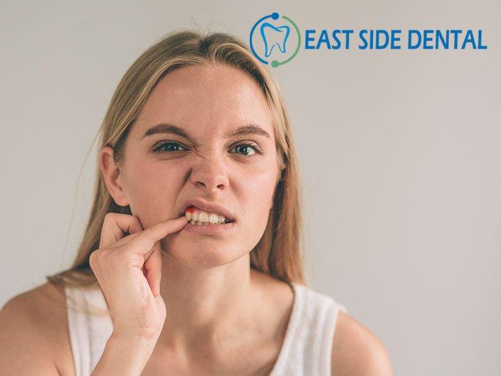 dental_eastside - eastside dental Twitter Profile | Twitock