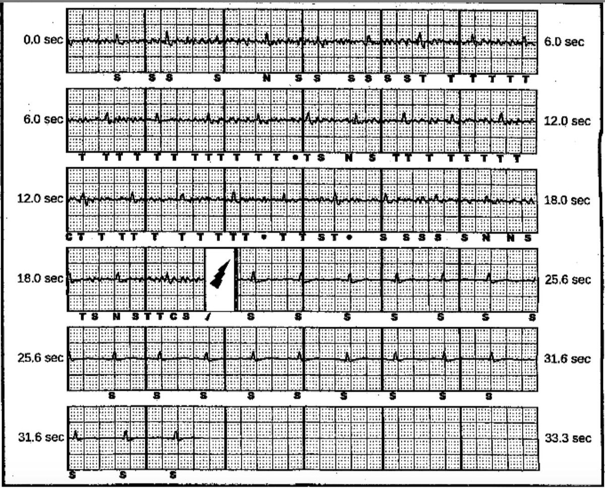 The First Use Of A Rotating Mechanical Dilator Sheath For S-Icd Coil Extraction: A Case Report heartrhythmcasereports.com/article/S2214-…