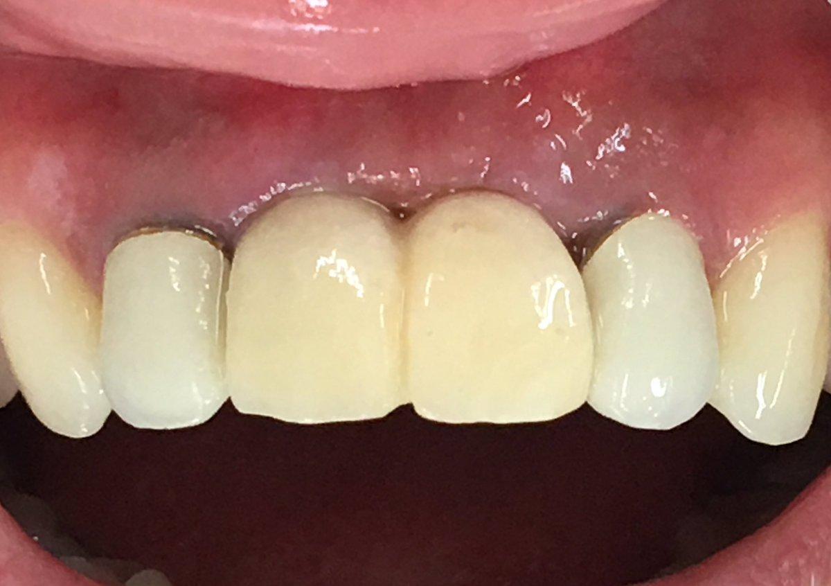 インプラント周囲炎をリカバリーした即時荷重審美インプラント。2週間でここまで治りました。できるだけ痛くしない腫らさない辛くしない、を実践しています。症例はfacebookでご覧下さい。真剣に悩まれてる方、ご相談下さい。#松元教貢歯科医院 #インプラント #身体に優しい手術 #再生医療