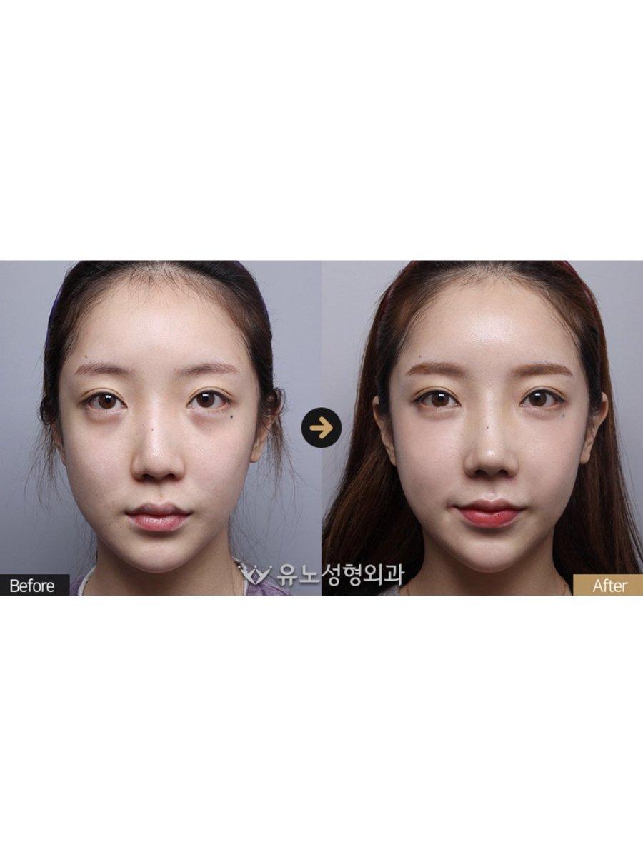 有能なユノ整形外科?の鼻の手術?凹凸の無いのっぺりとした顔がメリハリのあるもっと可愛い顔に??#鼻再手術(ワシ鼻+下がった鼻矯正)鼻が変わると顔の印象もガラリと変身?可愛く綺麗に大変身したい方、LINEまでお問い合わせください❤️あなたに合った方法をご紹介?