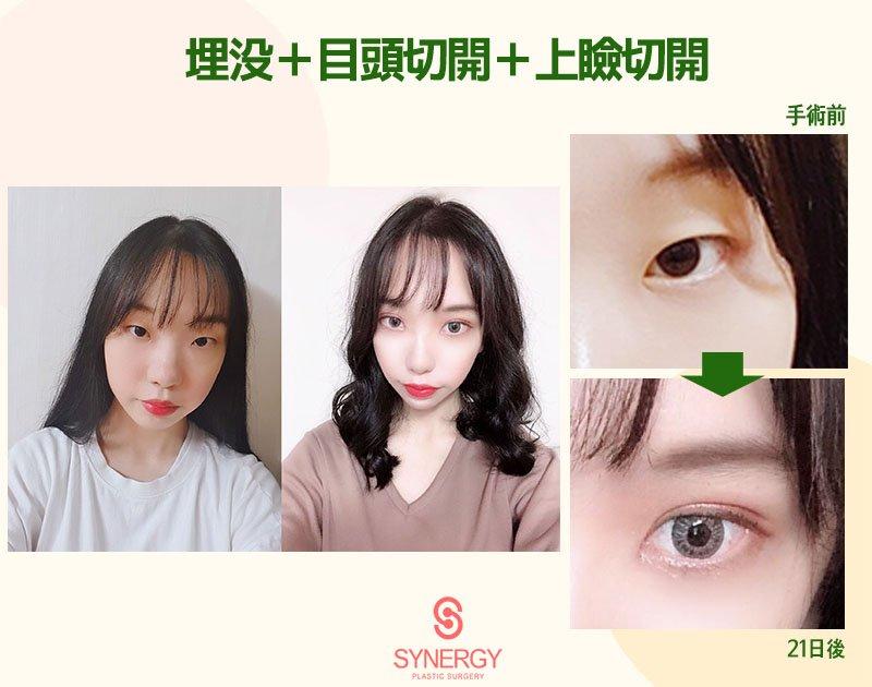 ✨目の整形の症例写真✨?クリニック名 : シナジー整形外科手術部位:埋没+目頭切開+上瞼切開HP:                  LINE ID: @pgs7984p#シナジー整形外科、#目整形、#切開、#埋没、#韓国、#カンナム
