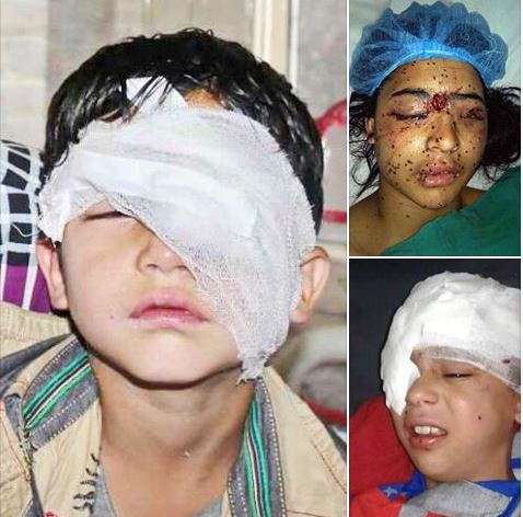 The blood of innocent Kashmiries children & women is being spilled everywhere in Srinagar, the Muslim ummah are silent while Pakistan wait for UN decision. Pak Need to take action#  #KashmiriGenocideByModi<br>http://pic.twitter.com/5dAI2AvRF0