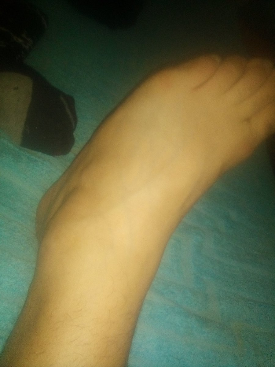 #MiTobillo engince tobillo izquierdo.