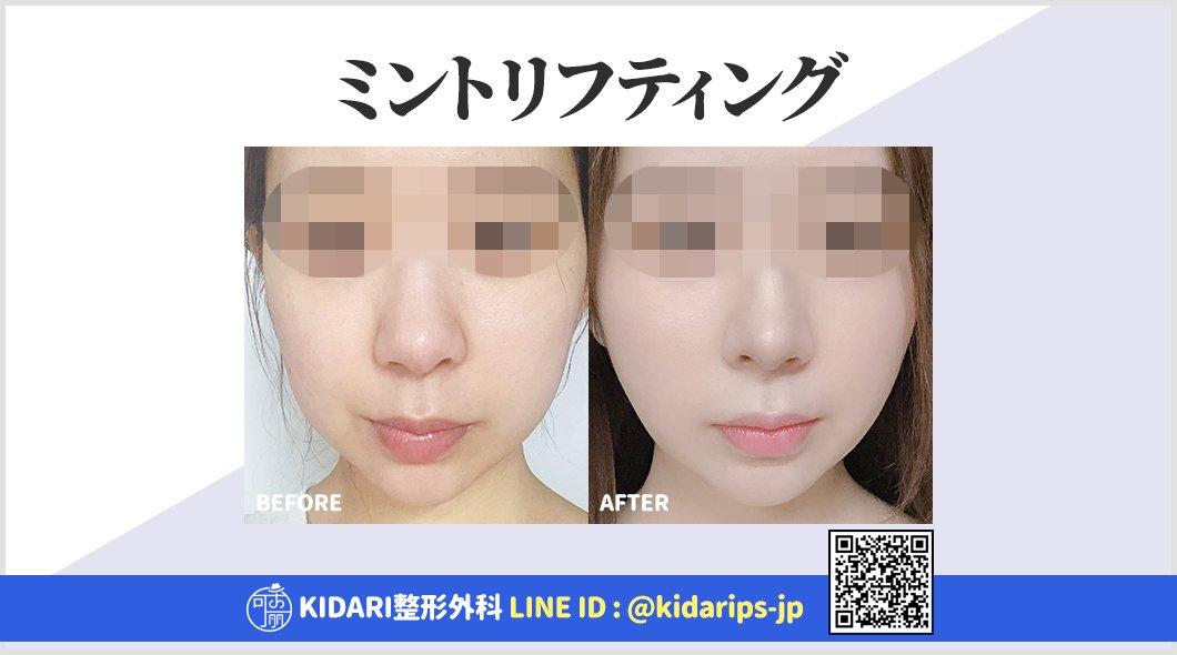 ✨韓国 KIDARI整形外科症例写真✨手術なしで気軽にできるミント糸リフティングでお肌の弾力もVラインも取り戻しましょう?アンチエイジング専門のKIDARI整形外科にお任せください?公式LINE ? #童顔整形 #若返り整形