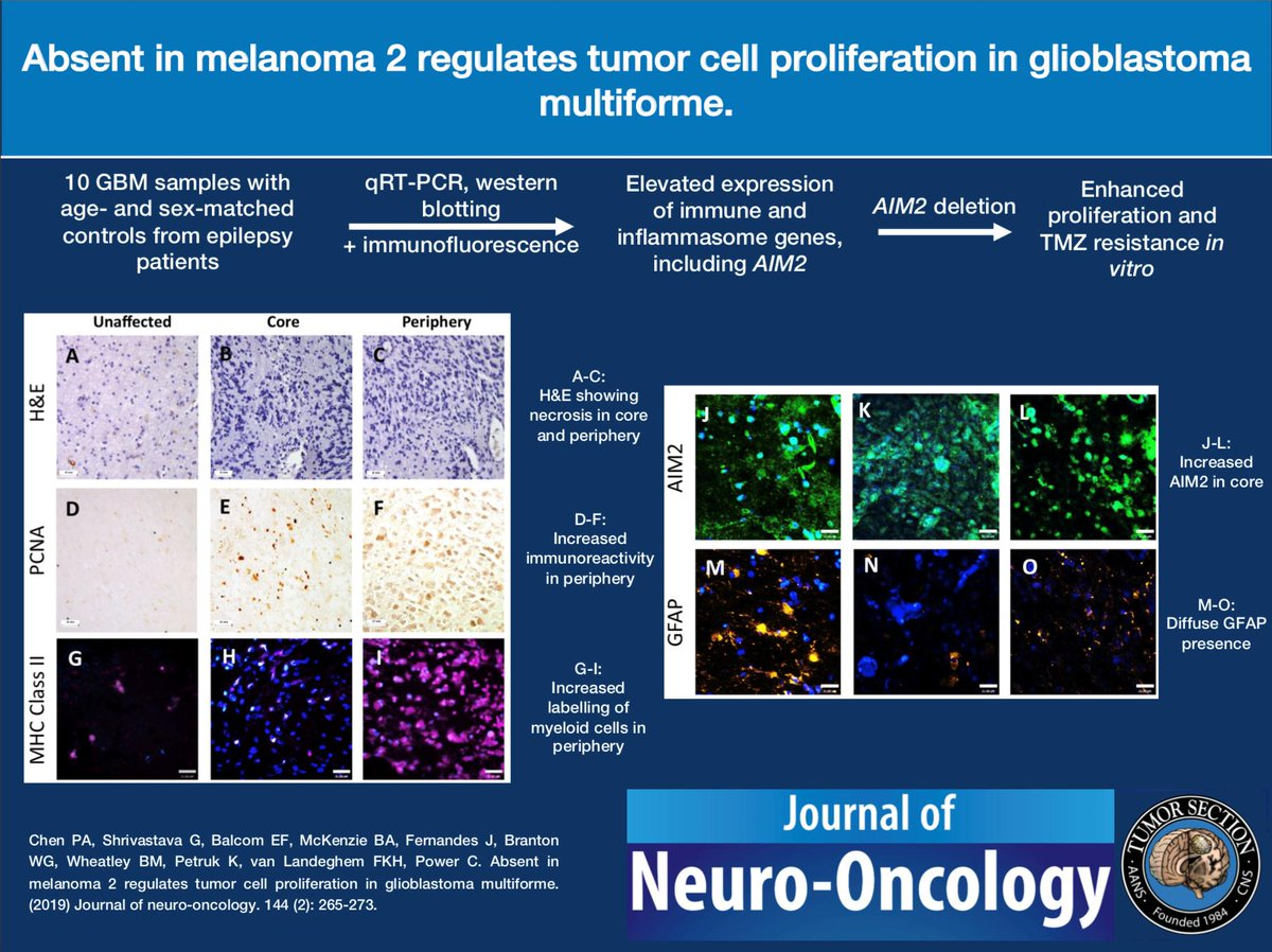 Journal of Neuro-Oncology (@JNeurooncol) | Twitter