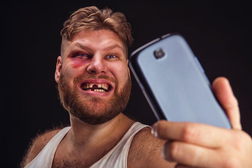 Смешные картинки мужик с фингалом, днем