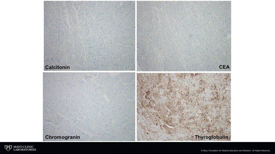 Mayo Pathology (@MayoClinicPath) | Twitter