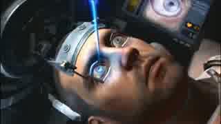 レーシック手術のイメージ