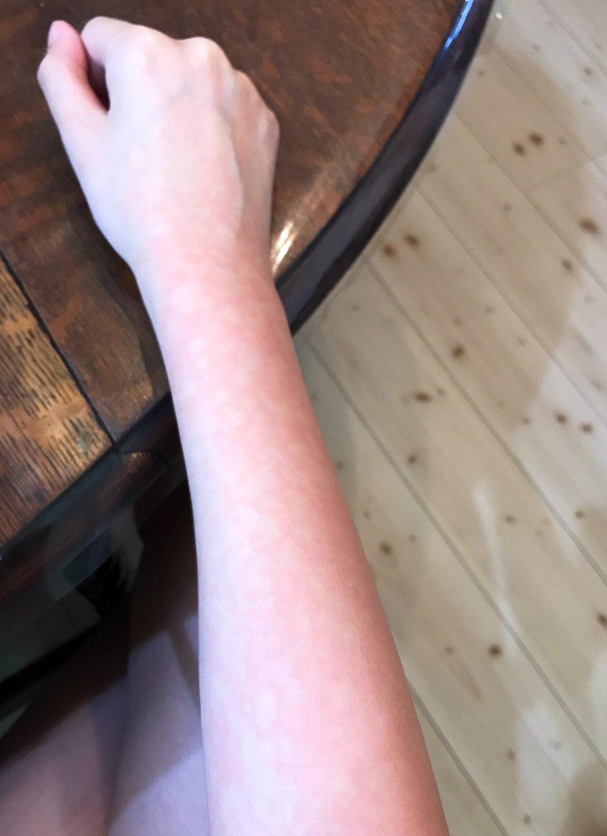 が ピリピリ する 皮膚