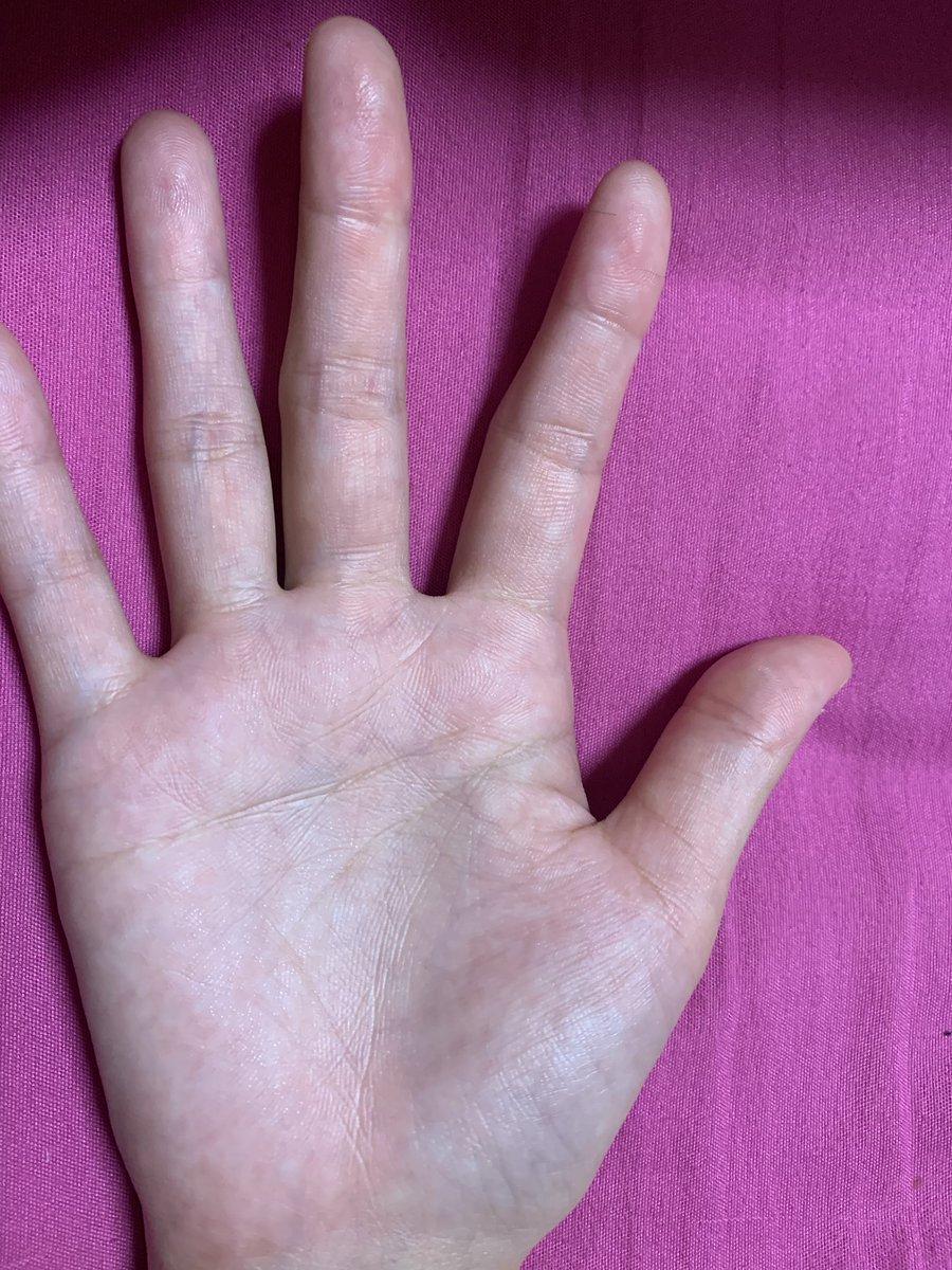 血管 浮き の 手