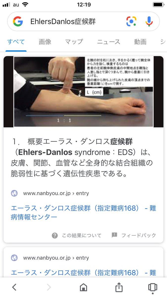 エーラスダンロス症候群