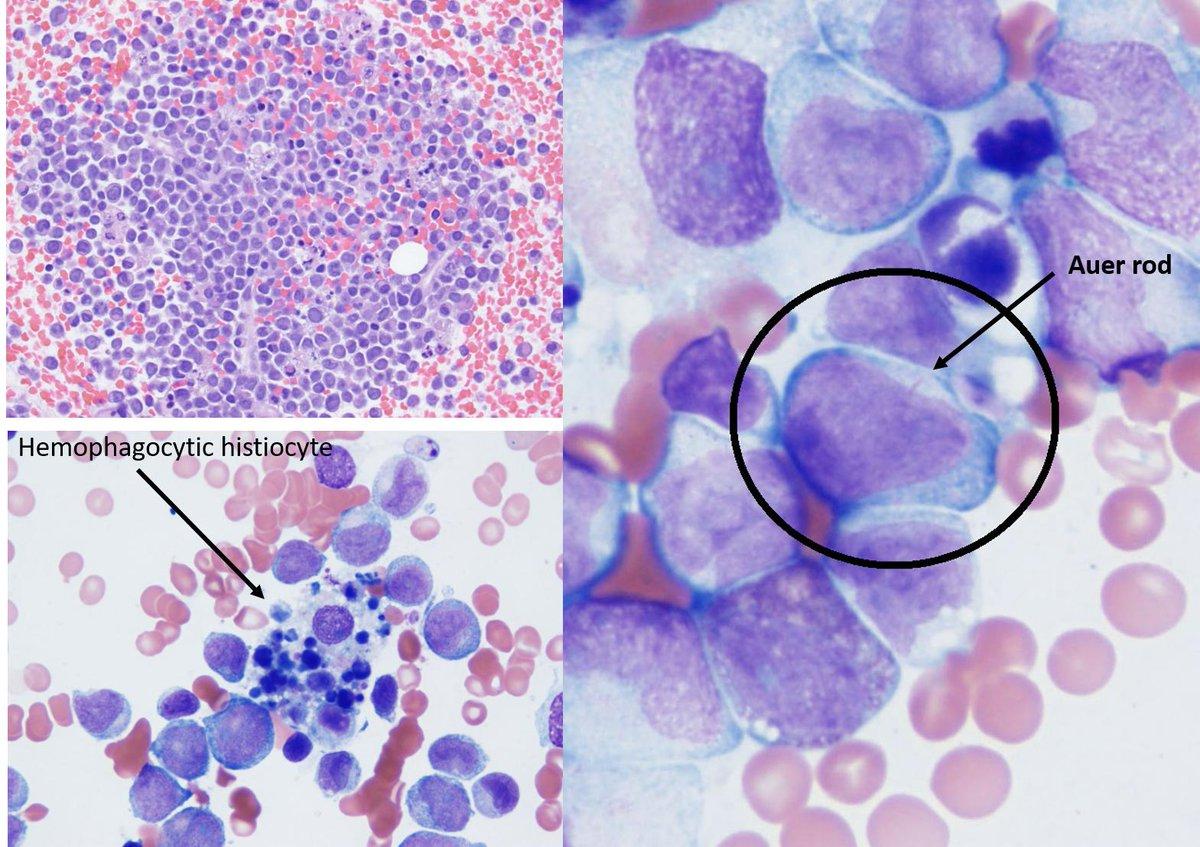 leukemia hashtag on Twitter