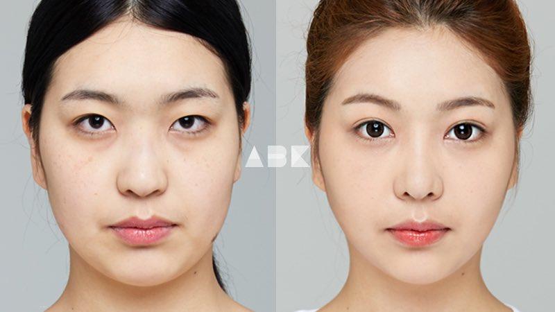 韓国美容外科サポート(ღˇ◡ˇ*)♡#ALLBEAUTYKOREA #症例写真ABK公式提携病院?【グロービー美容整形外科】☑︎目整形(埋没,目頭)☑︎鼻整形☑︎Vラインリフティング☑︎顔の脂肪移植,脂肪吸引輪郭が整い、愛され顔に変身♡美容整形•専門通訳なら?ABK LINE ⇒