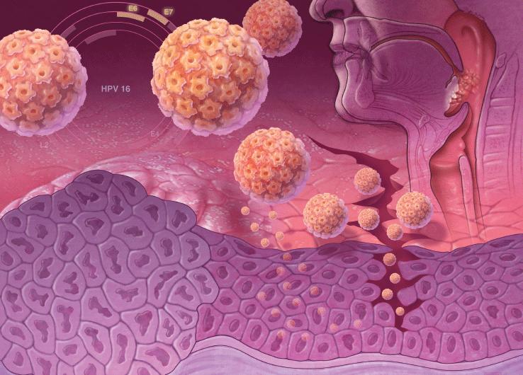 ВПЧ орально и рак