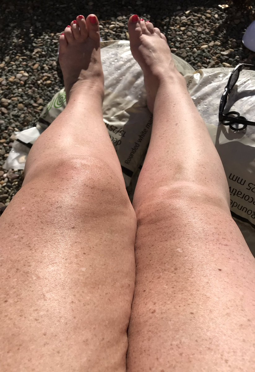 #Obligatory #Leg shot, whilst in the #sun, #tanning nicely & the #toning & #LegLifts have begun again in earnest!!#FitnessMotivation #FitnessGoals #MJsWorld
