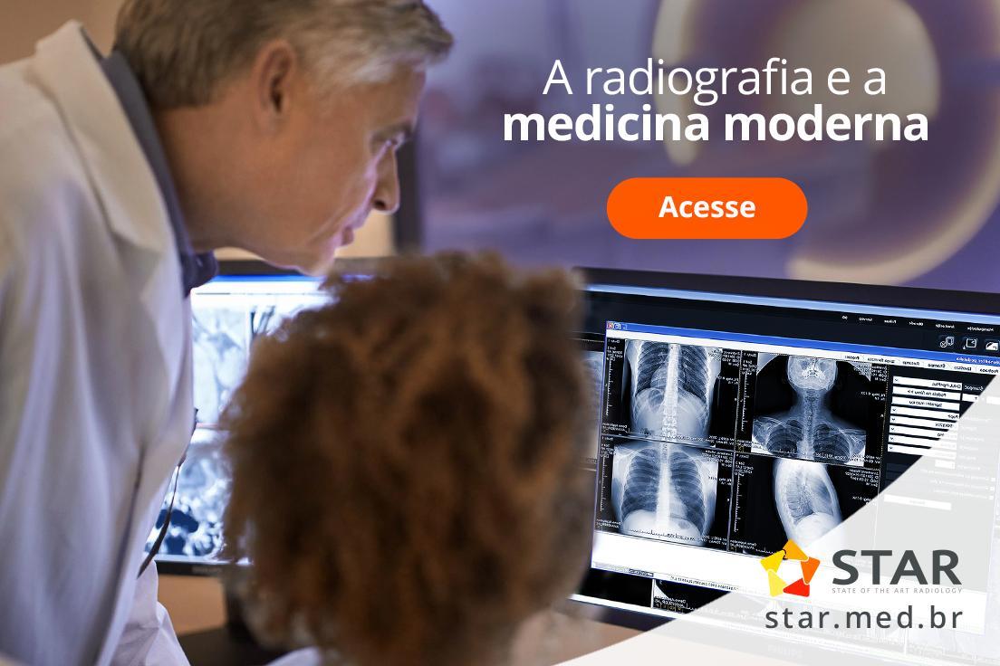 Nesse novo artigo vamos entender os benefícios da radiografia, como ela tem caminhado e para onde caminha.  Acesse: https://www.star.med.br/star-blog/ #radiodiagnóstico #radiografia #telemedicina #telerradiologia #ressonânciamagnética #raiox #telelaudo #laudosadistância #radiologia