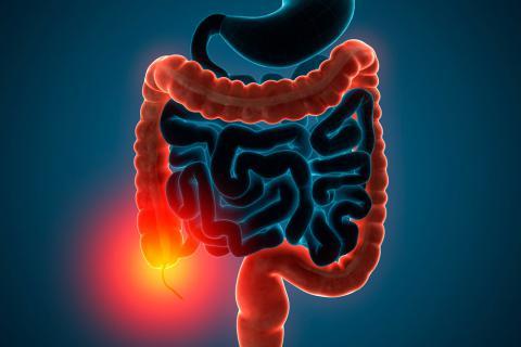 Colitis causa perdida de peso