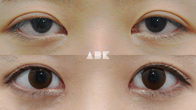 韓国美容外科サポート(ღˇ◡ˇ*)♡#ALLBEAUTYKOREA #症例写真ABK公式提携病院?【グロービー美容整形外科】☑︎目再手術☑︎目つき矯正☑︎目頭復元重たい印象の目がはっきりと!洗練された目元になりました?✨美容整形相談•専門通訳が必要なら?ABK公式LINE ⇒