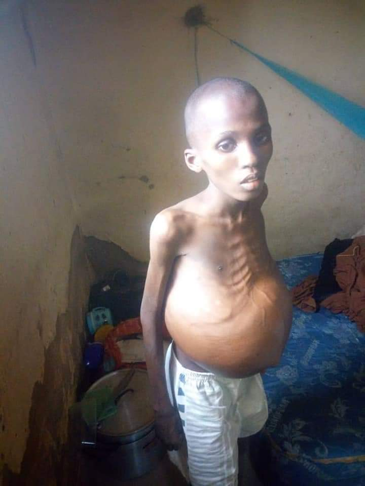 AL-AWN FOUNDATION   This is an urgent distress call to the muslim ummah for our dear brother, Ibrahim with liver cancer at the national hospital,Abuja who needs the sum of N360,000 naira for  an urgent operation.   Let's assist our dear brother as the health is deteriorating. <br>http://pic.twitter.com/2WLJxOs13c