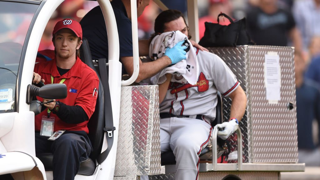 Charlie Culberson suffered multiple facial fractures after being hit in cheek 2wsb.tv/2O2oDwH