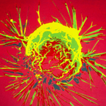 Image for the Tweet beginning: UK #Cancer survival still lagging
