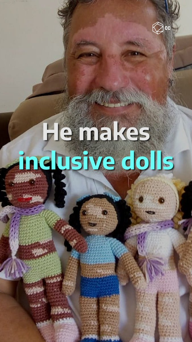 This man is started making dolls with vitiligo for his grandchildren so that his grandchildren will remember him since he suffers from this condition. ❤️