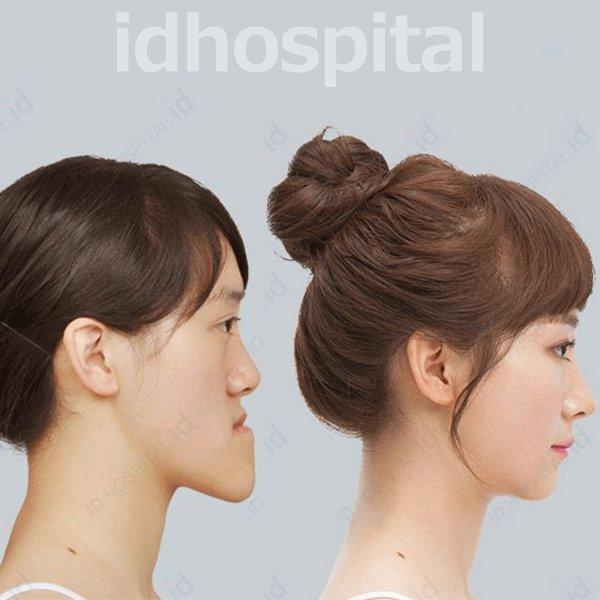 ..両顎手術で大変身。顔のサイズが半分に!?→.美容整形手術で容姿だけではなく人生までも大きく変えた方は数知れず!→...#韓国整形#韓国id美容外科#症例写真#両顎手術#目整形#二重整形#ビフォーアフター