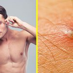 Image for the Tweet beginning: Ingrown hairs: how to spot