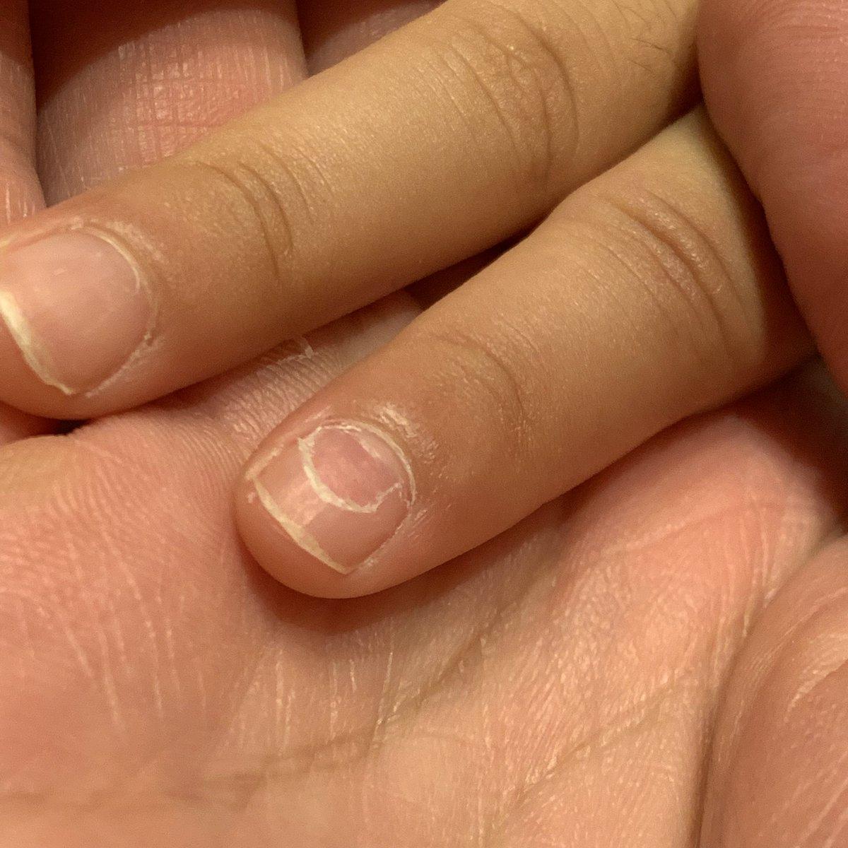 の た が 爪 剥がれ 足 親指 の 転んで足の親指の爪が剥がれて抜いた話【写真ナシ】