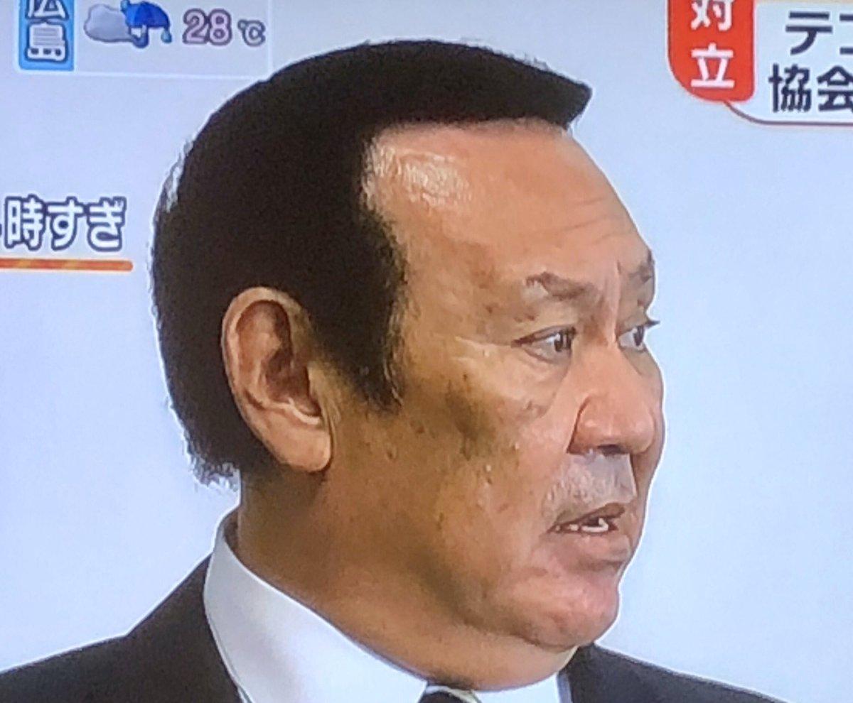 テコンドー ヅラ