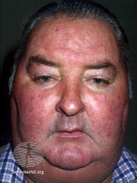 Простатит отекает лицо как простатит влияет на артериальное давление