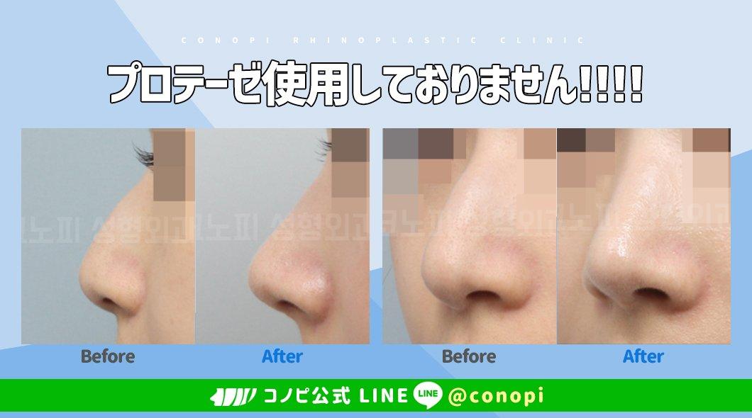 韓国鼻専門?コノピ美容整形外科プロテーゼを使用しなくてもこんなに自然な鼻に変化する事が可能です?コノピではお客様の理想に最大限お応えできるように1:1で個人に合った手術方法をご提案しています?お問合せ ? #韓国鼻整形 #鼻整形 #無保形物