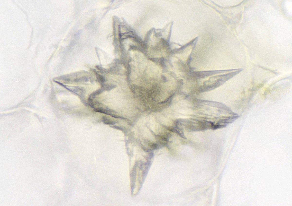 カルシウム シュウ 結晶 酸
