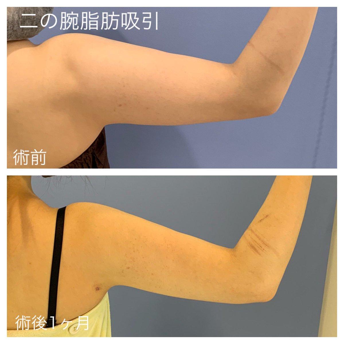二の腕 整形
