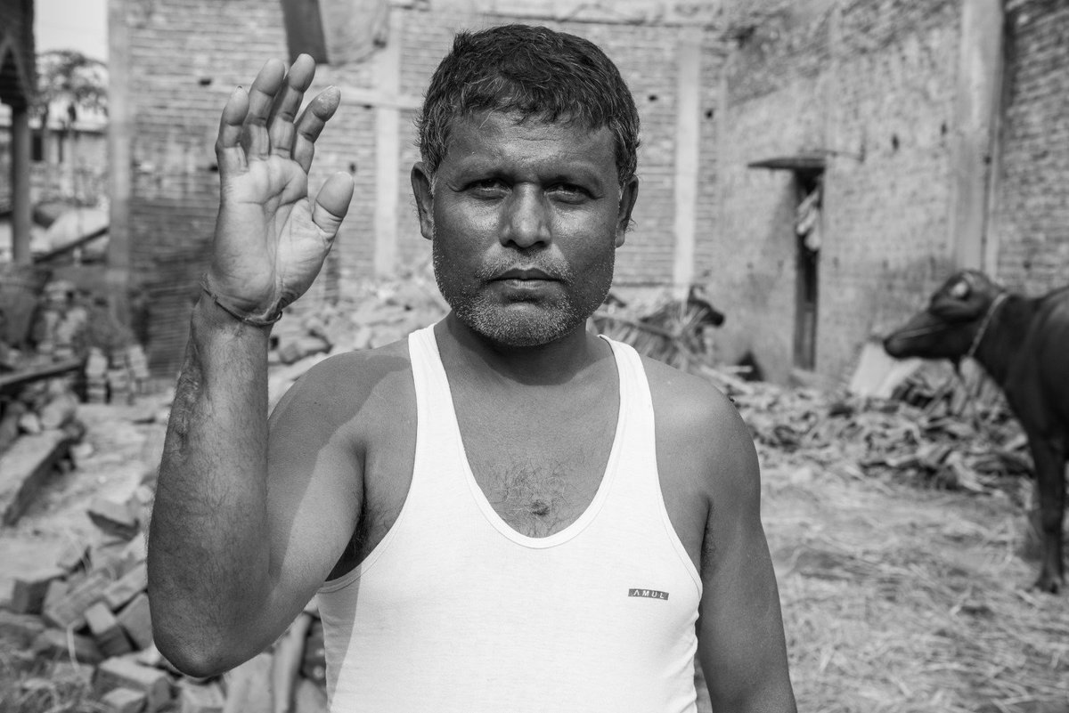 """""""I went to Malaysia first in 2004. In Malaysia, I worked at Cheung Hing Timber Company for 3 months. Then I got into an accident. Look at my hand, I got injured. Can you see? I worked for only three months and then there was the accident."""" #Madhes #Nepal Photo @digitalsubway"""