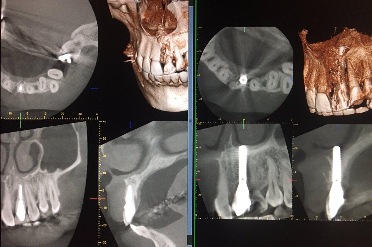 抜歯即時インプラント審美部位へのアプローチです。とても綺麗です。腫れない痛くない、普段通りに生活できるインプラント治療が当院の特徴です。