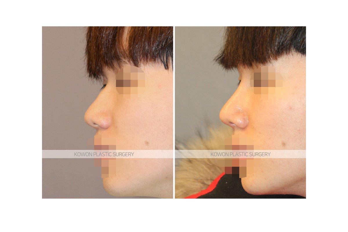 鼻 プロテーゼ 症例写真