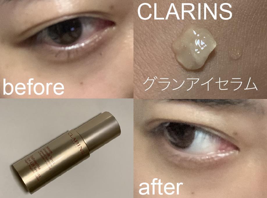 アイセラム クラランス