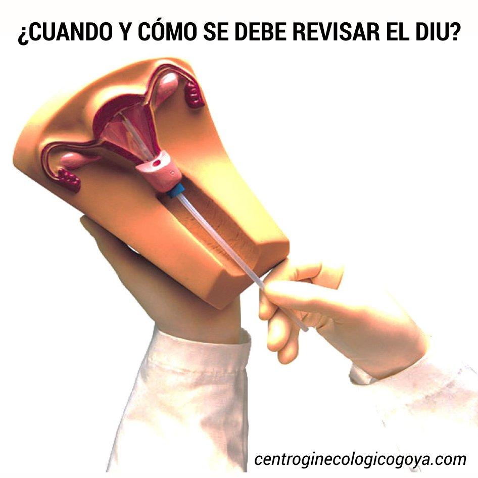 Ginecologia Goya على تويتر El Diu De Cobre Tiene Una