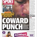 Great @telegraph_sport exclusive picture splash from @BuzzRothfield with incredible detail on the cowardly incident that set off @storm prop Nelson Asofa-Solomona and the likely punishment he'll receive from the #NRL