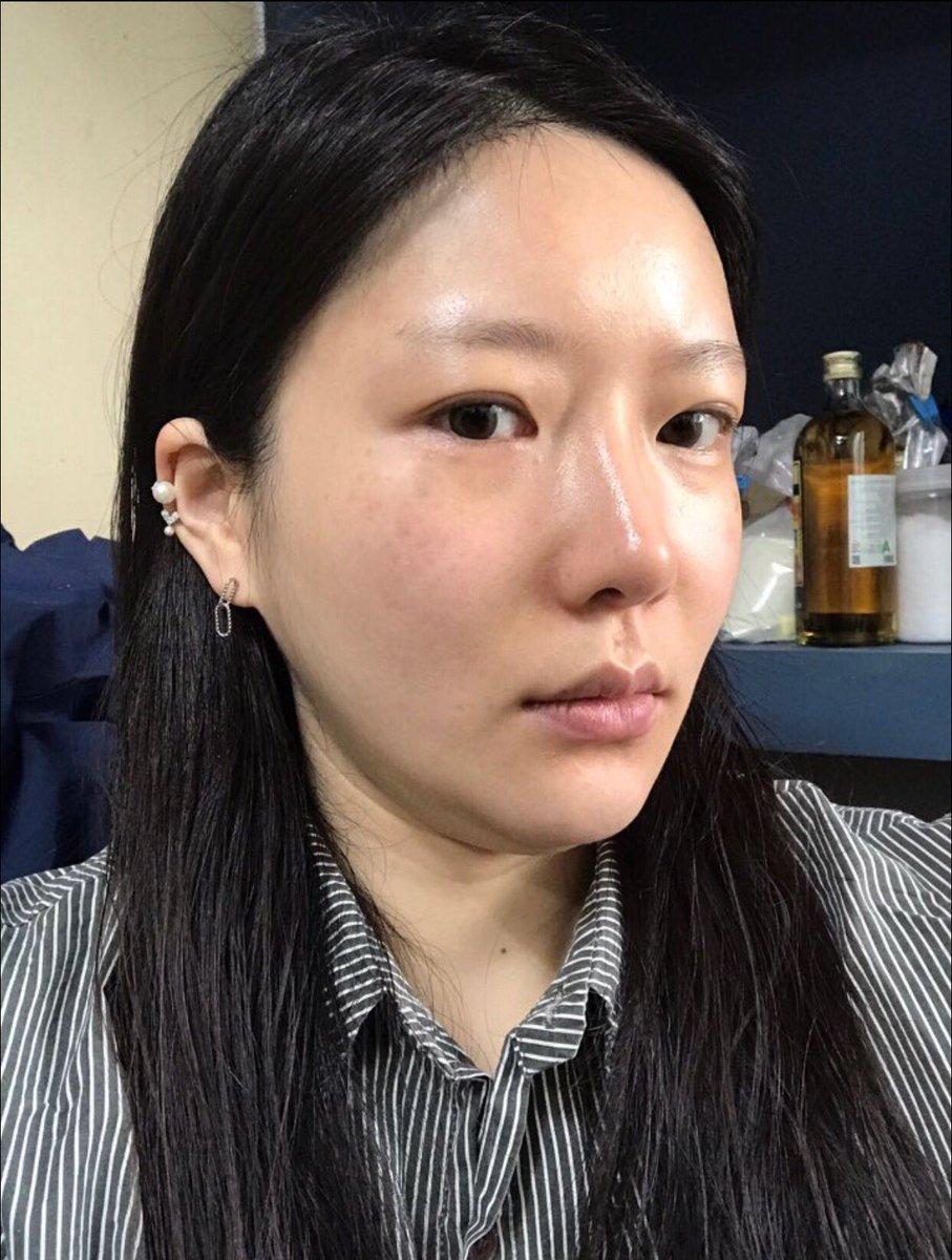 #ベリーグッド整形外科#顔脂肪吸引#糸リフト(エラスティクム+ミント)#ヒアルロン酸(前頬)輪郭手術後や加齢のたるみや顎下のもたつきも…一度に解決???VG整形外科 日本語対応#二重顎 #小顔 #Vライン