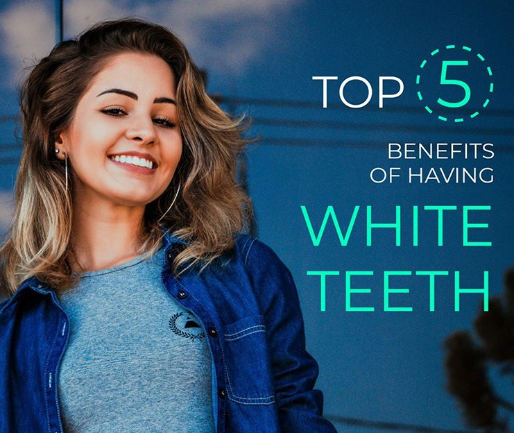 Consider teeth whitening! 1. Improves your appearance. 2. Boosts self confidence 3. Minimizes the look of wrinkles. 4. More attractive. 5. Doesn't damage your teeth.  #admiredental #dentist #springfieldma #oralhealth #smile