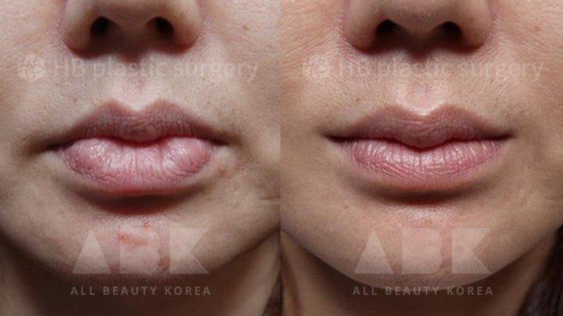 韓国美容外科サポート(ღˇ◡ˇ*)♡#ALLBEAUTYKOREA #症例写真ABK公式提携病院?【HB美容整形外科】☑︎唇異物質除去☑︎口角☑︎外側人中縮小☑︎上唇口結節第一印象を大きく変える唇の形。口角で印象チェンジ?美容整形相談•専門通訳が必要なら?ABK公式LINE ⇒